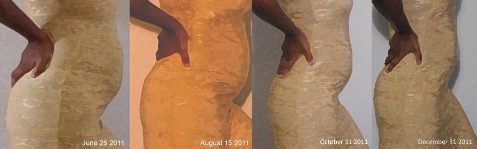 Fibroid-growth-comparison-photo