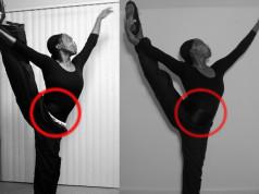 Photo-comparison-showing-how-fibroids-change-your-body2