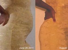 fibroidlady-comp-june-26-August-15