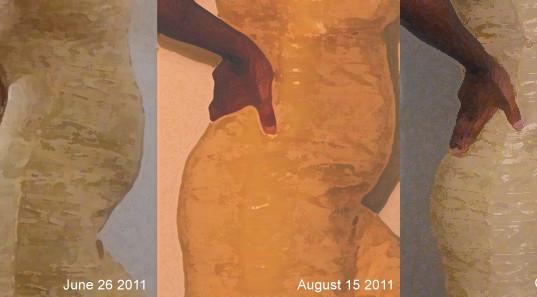 fibroidlady-comp-june-26-August-15-october-31