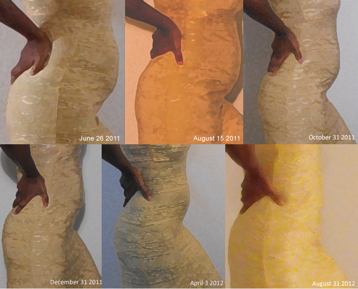 Shrinking Fibroids Naturally Before and After Pictures
