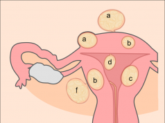 Schematic drawing of various types of uterine fibroids
